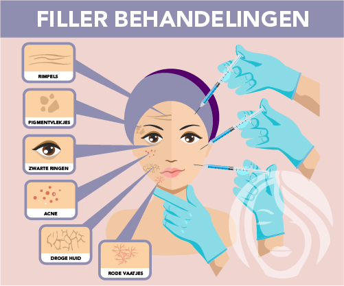 Verschillende filler behandelingen door Face it Almere