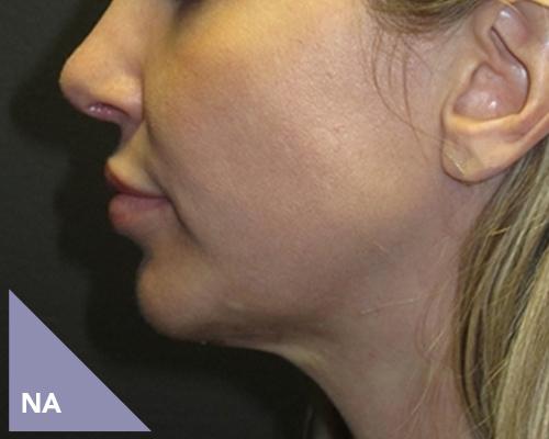 Jukbeenderen vergroten na behandeling door Face it Almere
