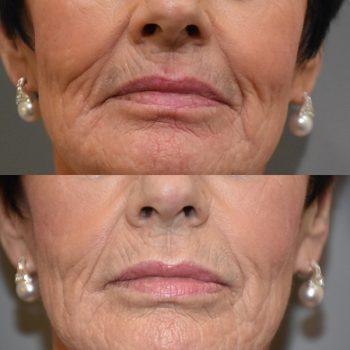 Lippen opvullen oudere personen