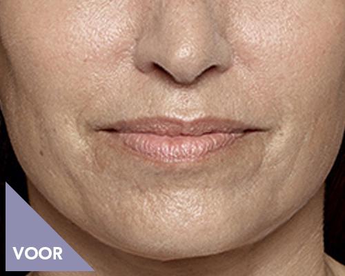 Mondhoek of marionetlijn voor behandeling door Face it Almere
