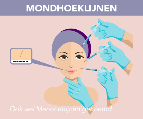 Infographic mondhoek of marionetlijn behandeling door Face it Almere
