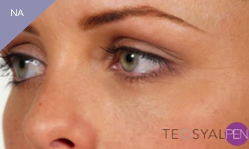 Foto na behandeling met Teosyalpen door Face it Almere