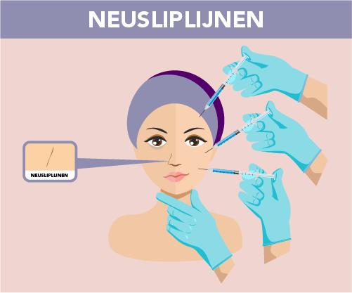 Neusliplijnen behandeling door Face it Almere