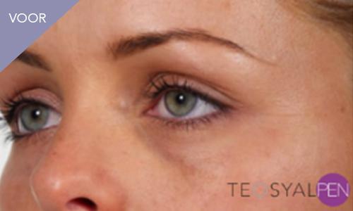 Foto voor gebruik filler behandeling met Teosyalpen door Face it Almere